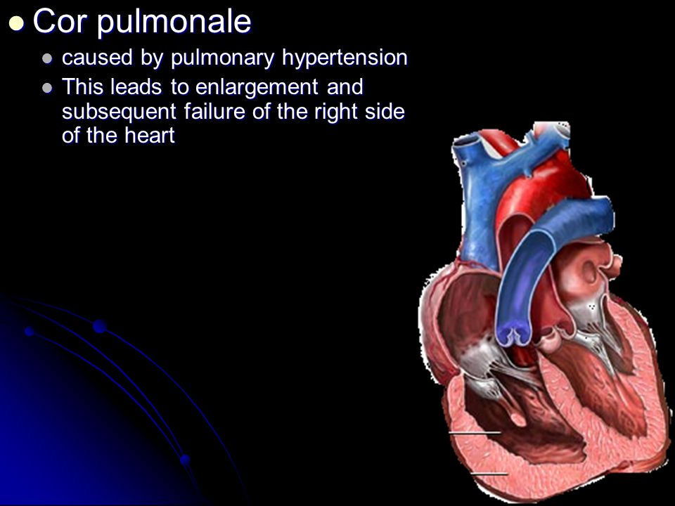 Cor pulmonale caused by pulmonary hypertension
