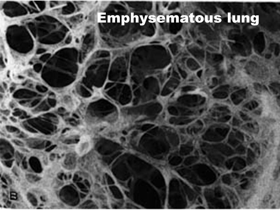 Emphysematous lung