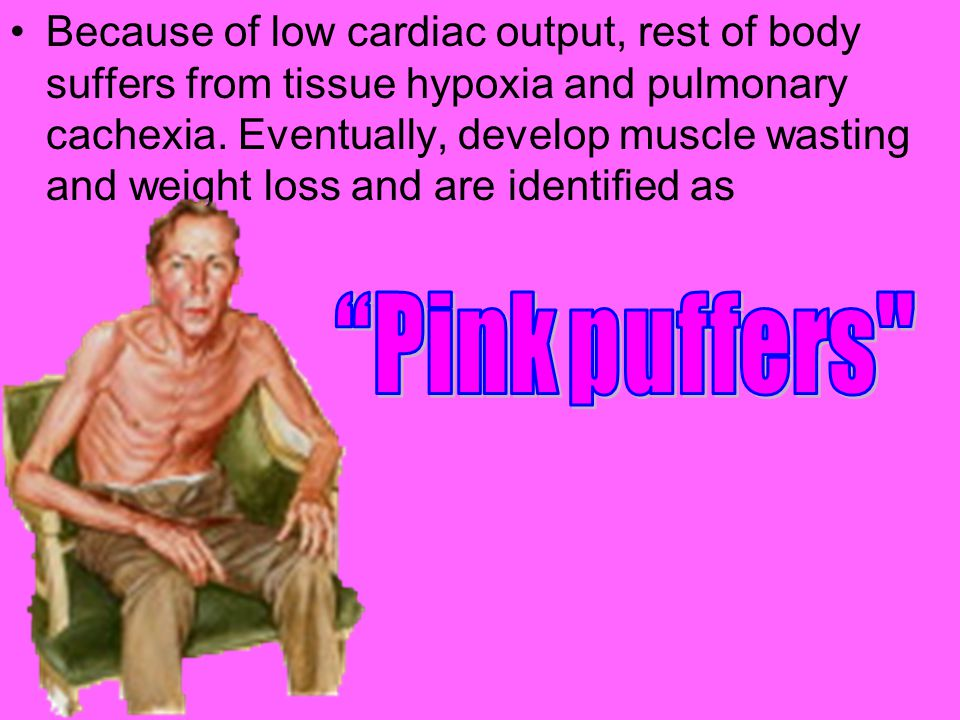 Because of low cardiac output, rest of body suffers from tissue hypoxia and pulmonary cachexia. Eventually, develop muscle wasting and weight loss and are identified as