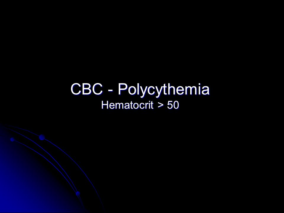 CBC - Polycythemia Hematocrit > 50