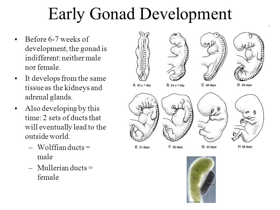 Early Gonad Development