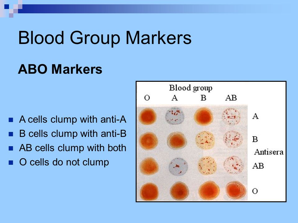 Blood Group Markers ABO Markers A cells clump with anti-A