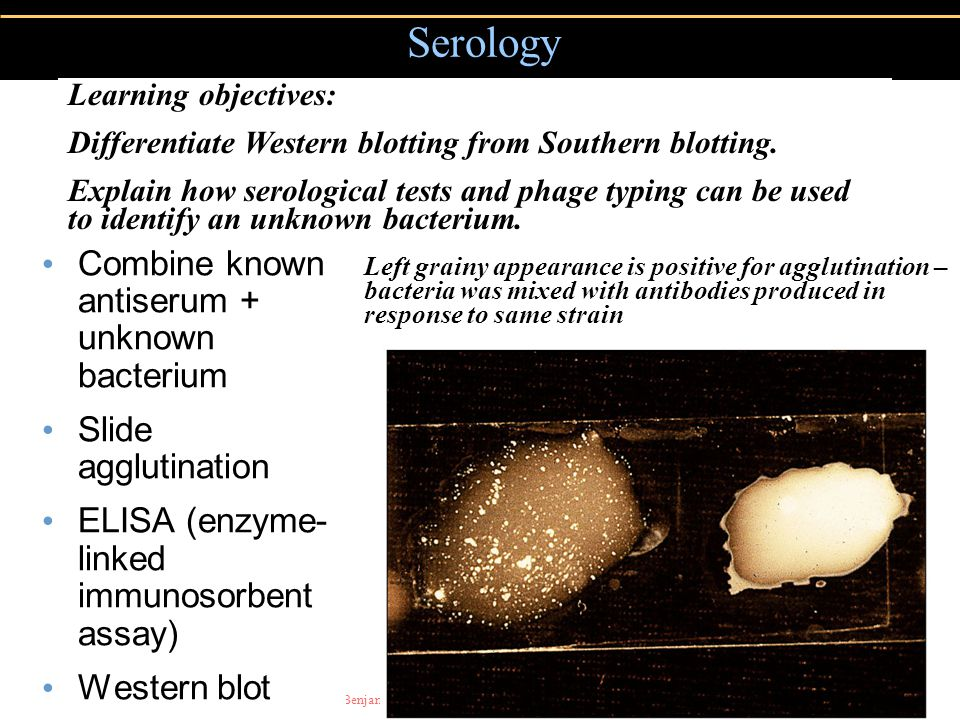 Serology Combine known antiserum + unknown bacterium