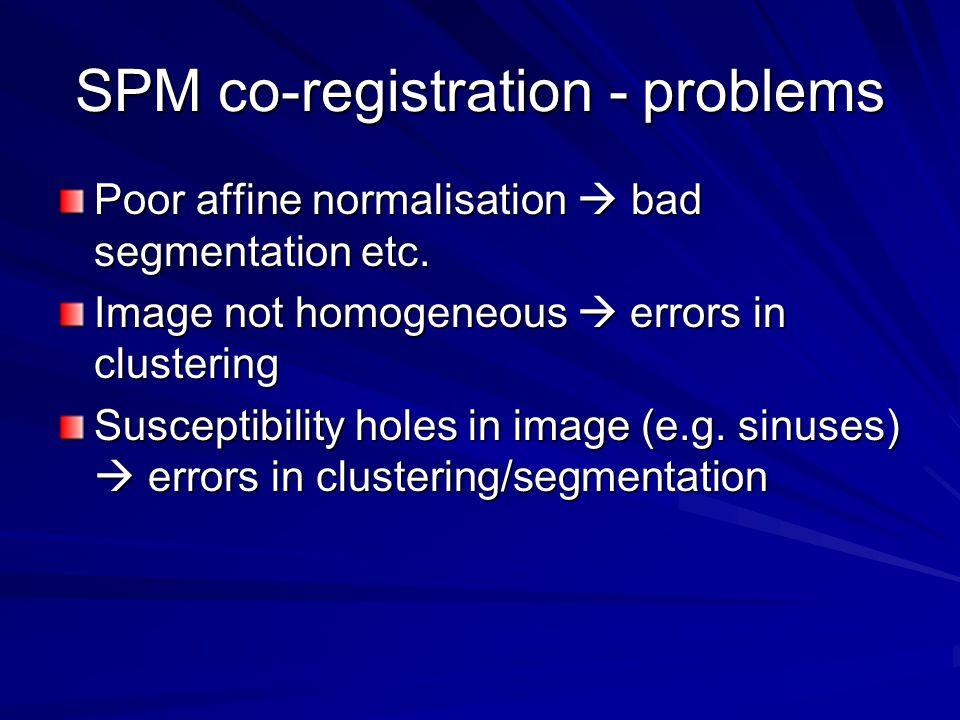 SPM co-registration - problems