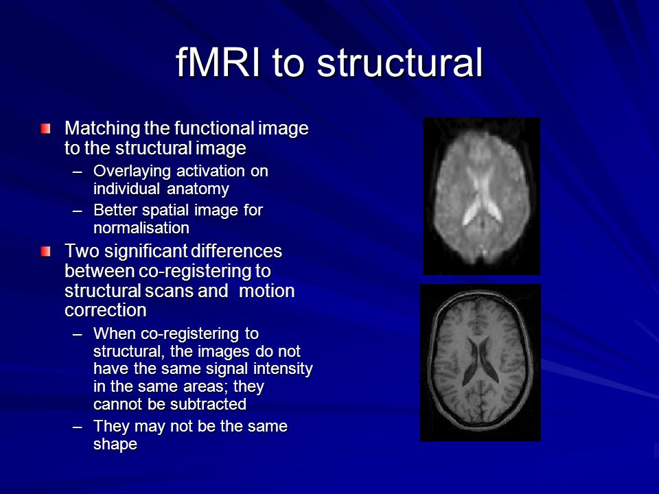 fMRI to structural Matching the functional image to the structural image. Overlaying activation on individual anatomy.