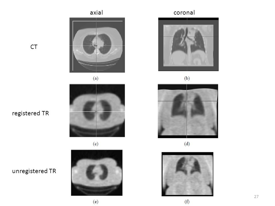 axial coronal CT registered TR unregistered TR