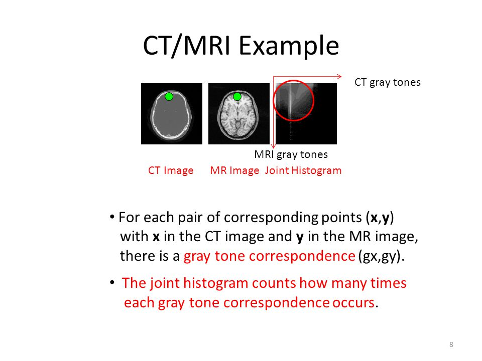 CT/MRI Example For each pair of corresponding points (x,y)