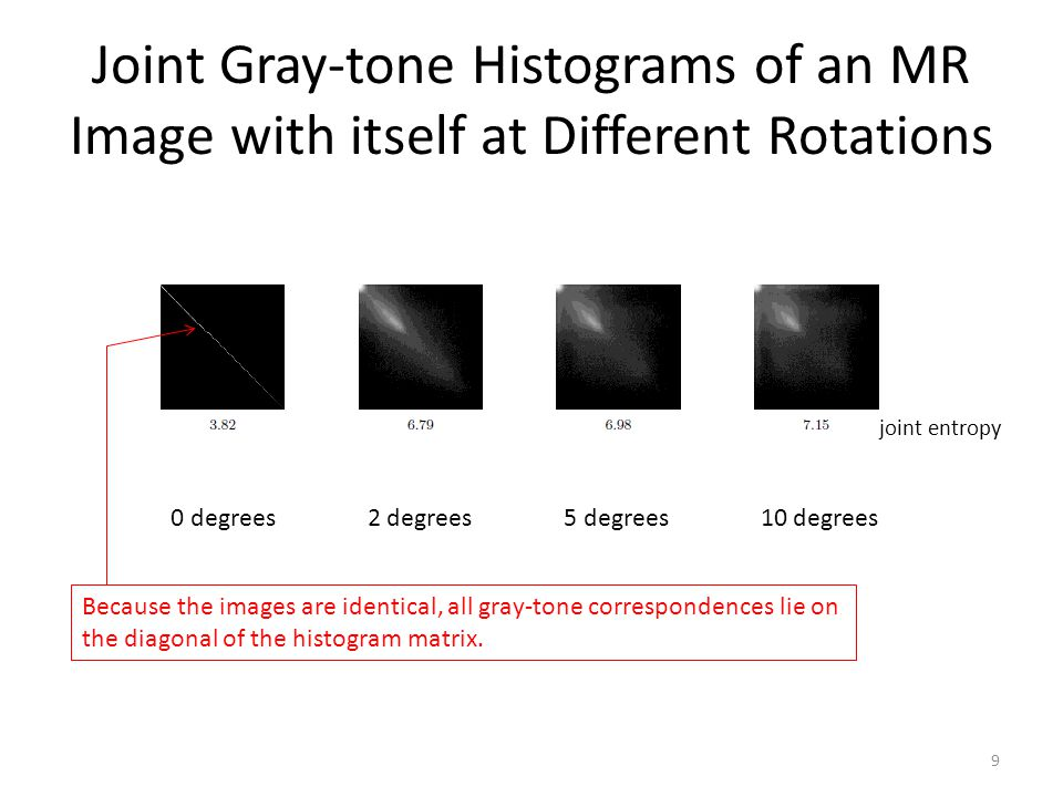 Joint Gray-tone Histograms of an MR Image with itself at Different Rotations
