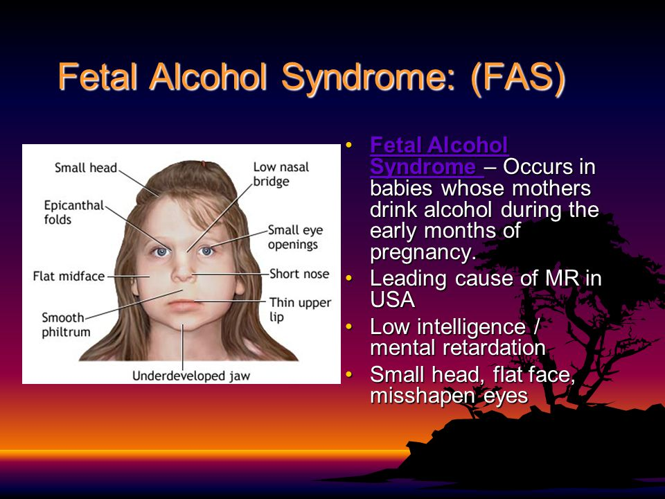 Fetal Alcohol Syndrome: (FAS)