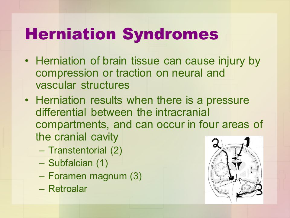 Herniation Syndromes Herniation of brain tissue can cause injury by compression or traction on neural and vascular structures.