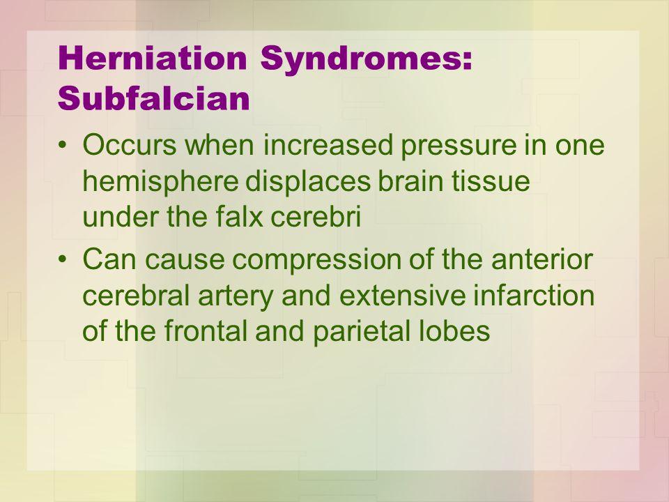 Herniation Syndromes: Subfalcian
