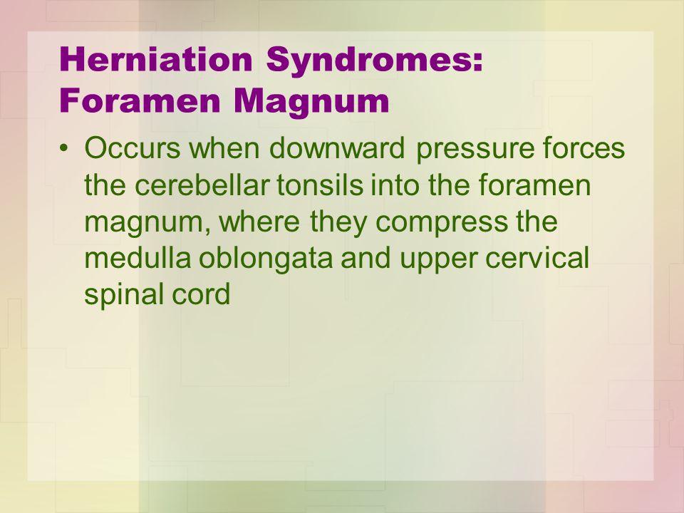 Herniation Syndromes: Foramen Magnum