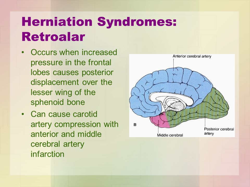 Herniation Syndromes: Retroalar