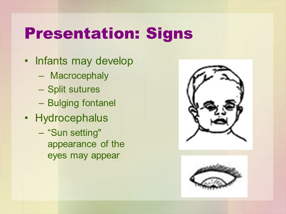 Presentation: Signs Infants may develop Hydrocephalus Macrocephaly
