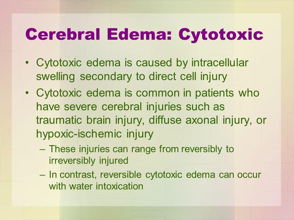Cerebral Edema: Cytotoxic
