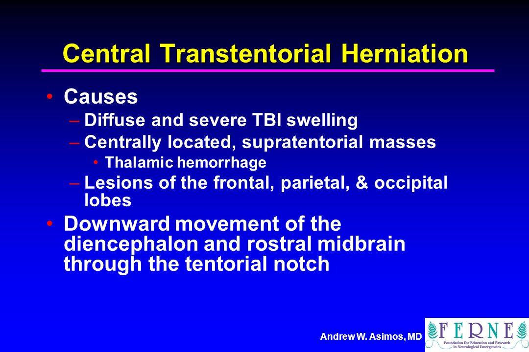Central Transtentorial Herniation