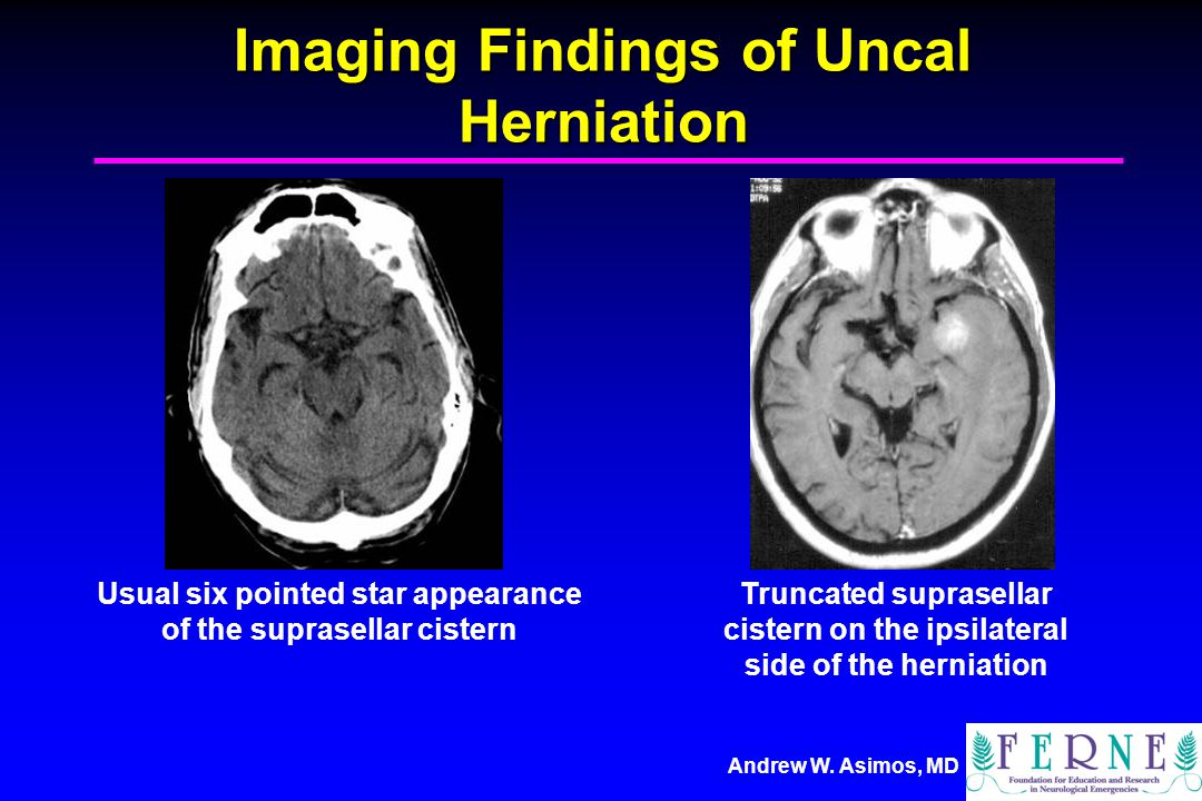 Imaging Findings of Uncal Herniation