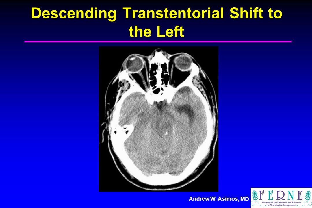 Descending Transtentorial Shift to the Left