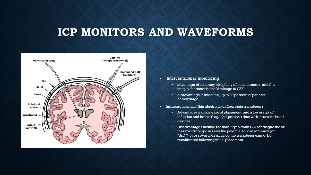 Icp monitors and waveforms