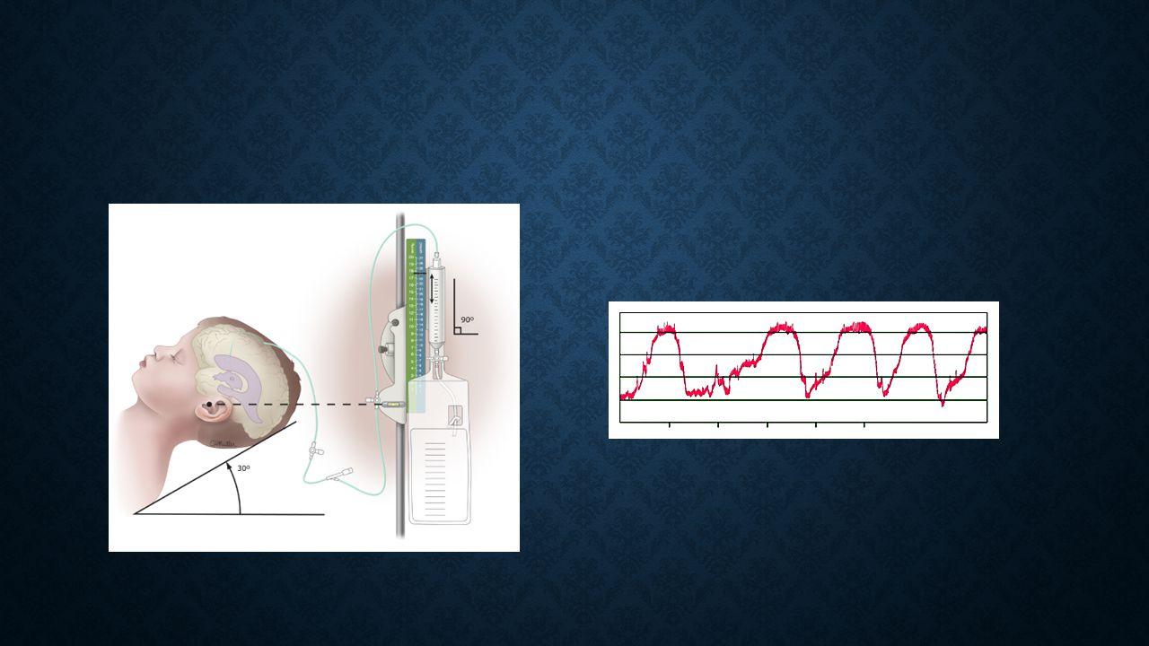 Interpreting ICP waveforms: A waves