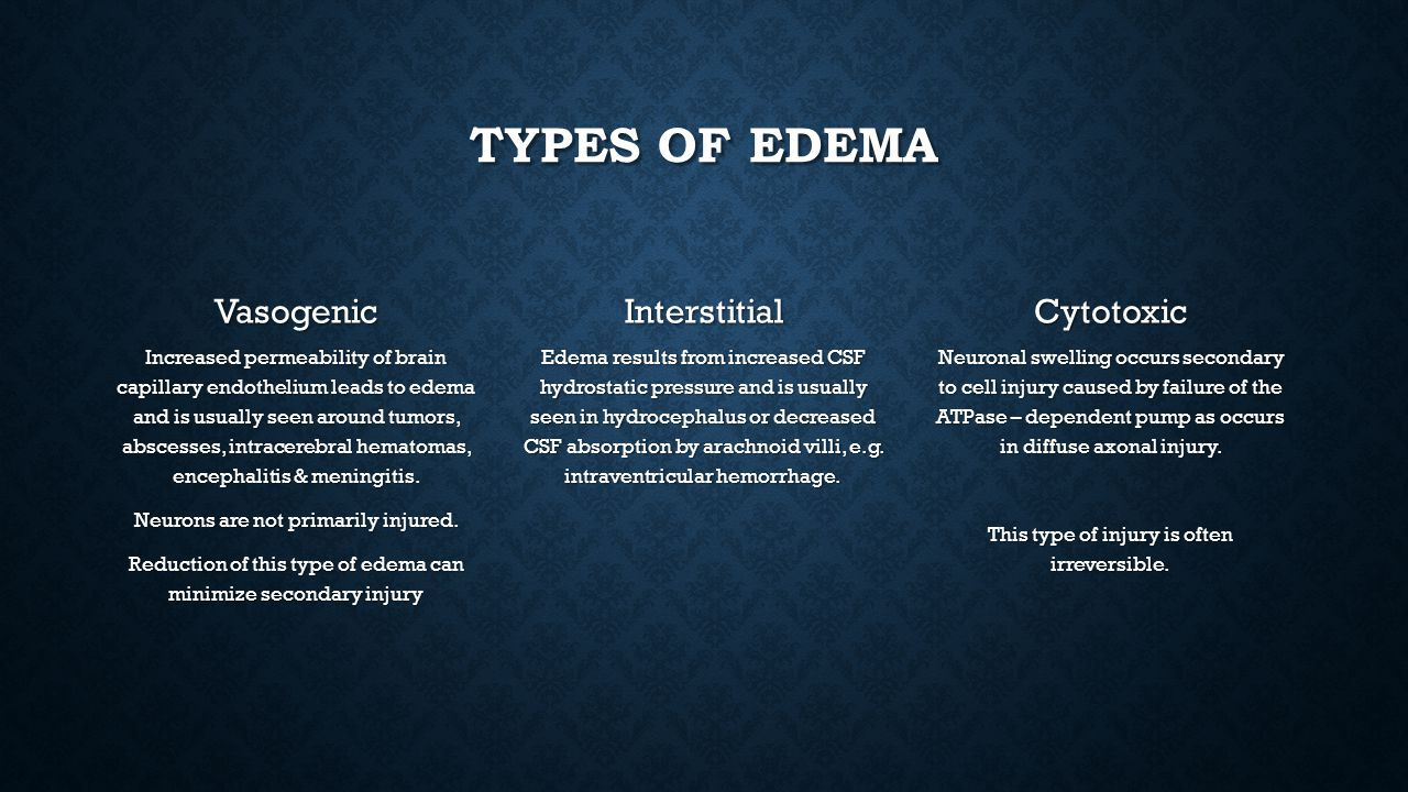 Types of edema Vasogenic Interstitial Cytotoxic