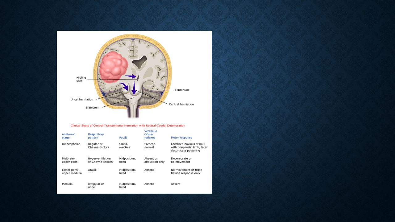 Brain herniation syndromes — Herniation of brain tissue can cause injury by compression or traction on neural and vascular structures [6,8]. Herniation results when there is a pressure differential between the intracranial compartments and can occur in four areas of the cranial cavity [6]: