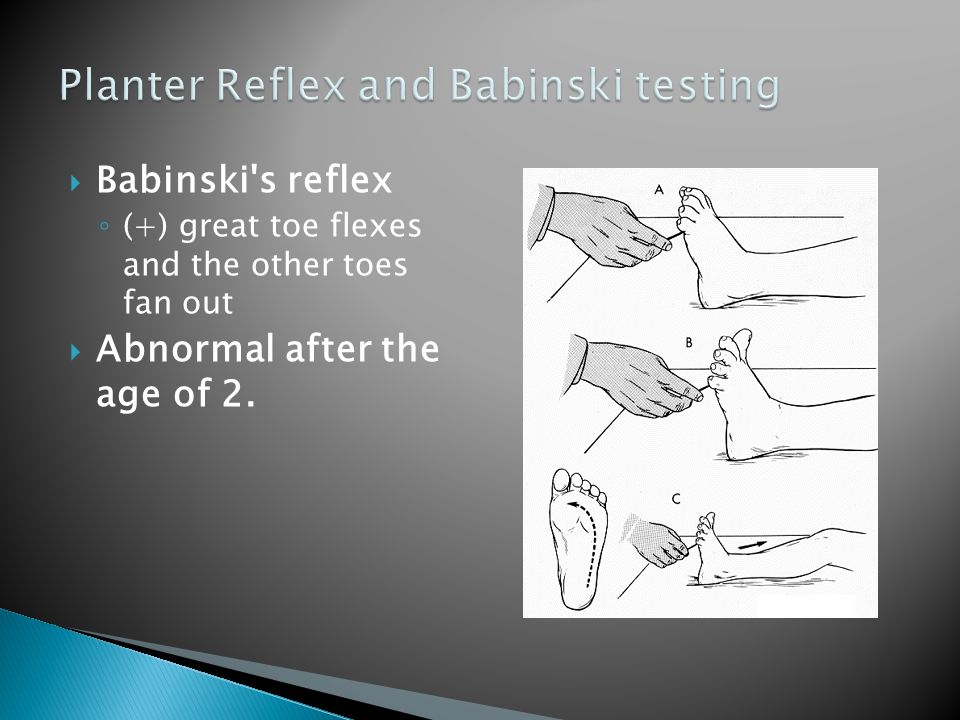 Planter Reflex and Babinski testing