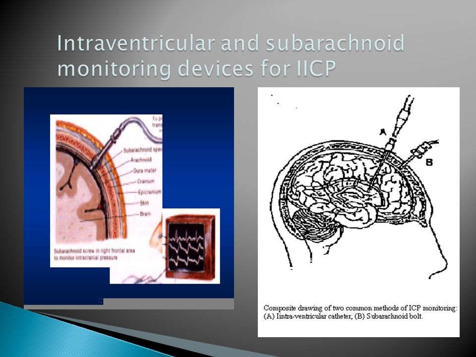 Intraventricular and subarachnoid monitoring devices for IICP
