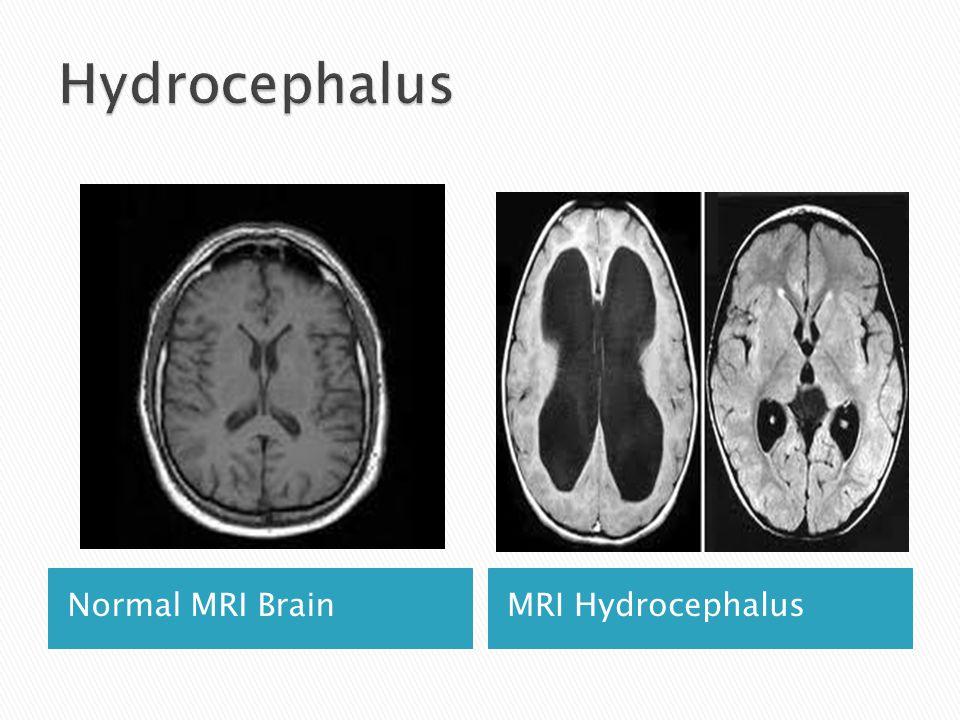 Hydrocephalus Normal MRI Brain MRI Hydrocephalus