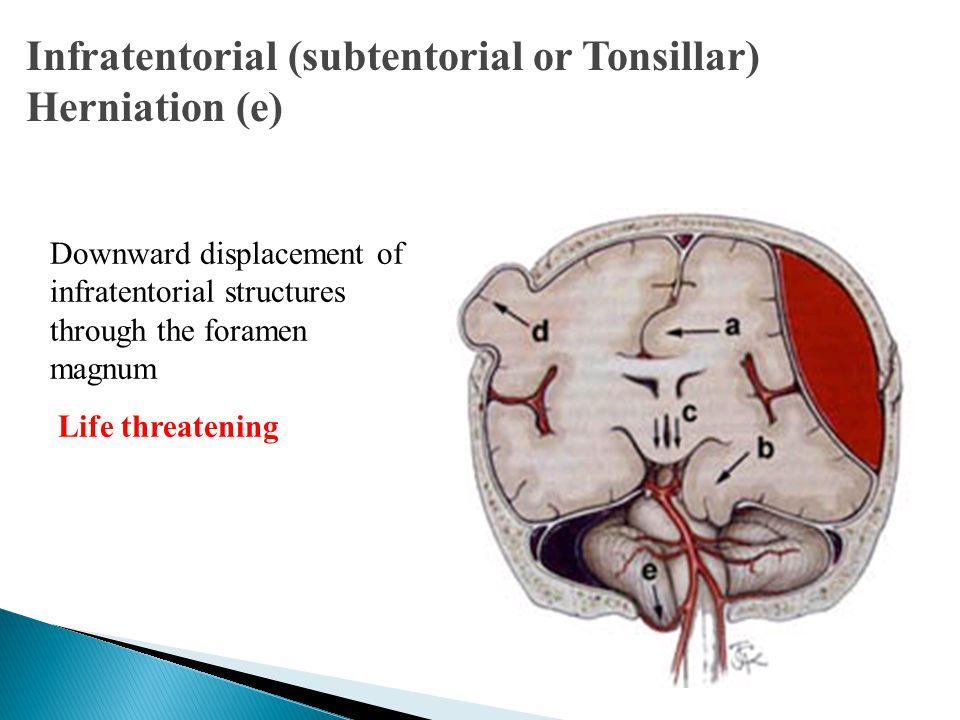 Infratentorial (subtentorial or Tonsillar) Herniation (e)