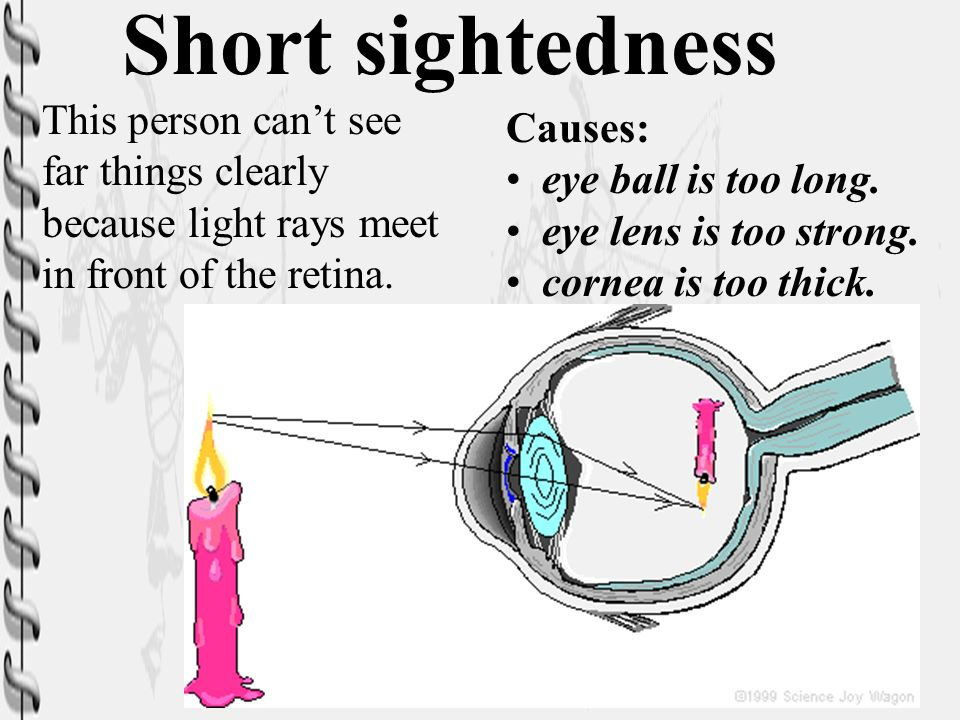 Short sightedness This person can't see Causes: far things clearly