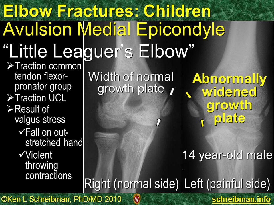 Elbow Fractures: Children