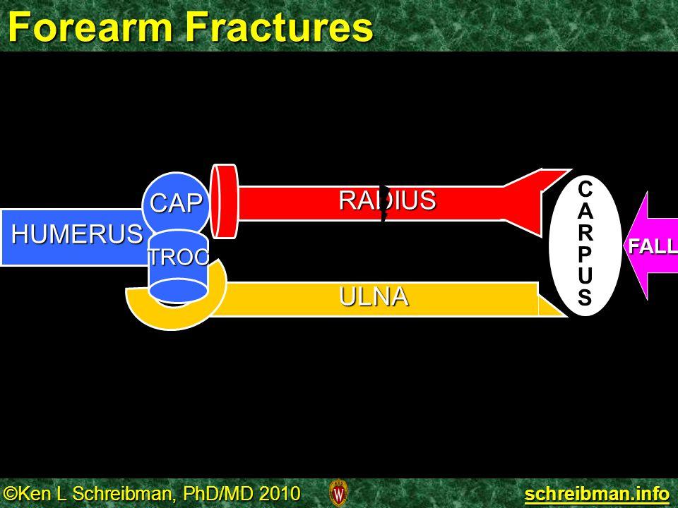 Forearm Fractures RADIUS HUMERUS CAP TROC CARPUS FALL ULNA