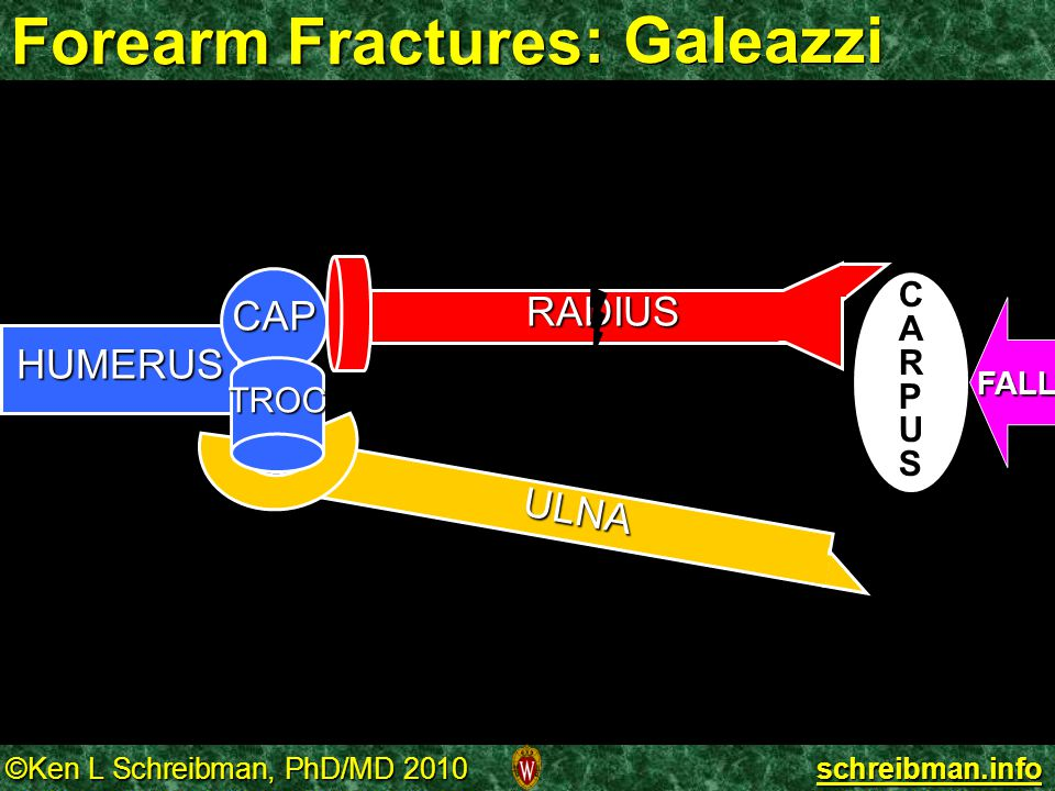 Forearm Fractures : Galeazzi RADIUS HUMERUS CAP TROC CARPUS FALL ULNA