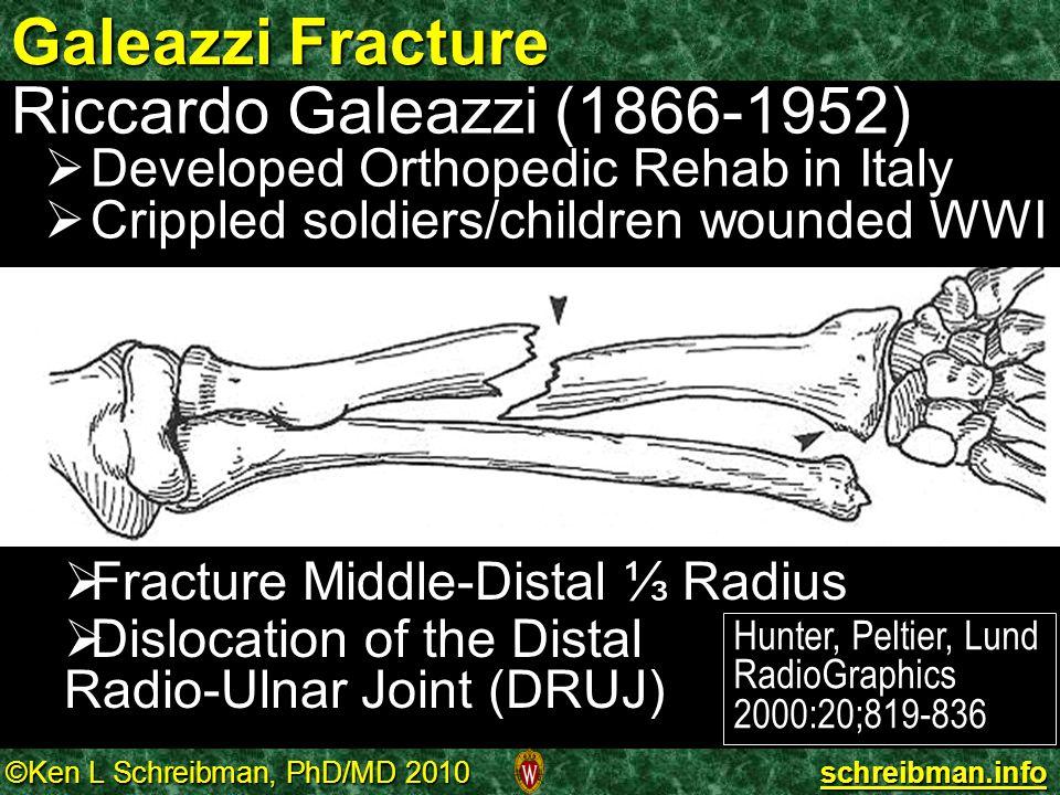 Galeazzi Fracture Riccardo Galeazzi (1866-1952)