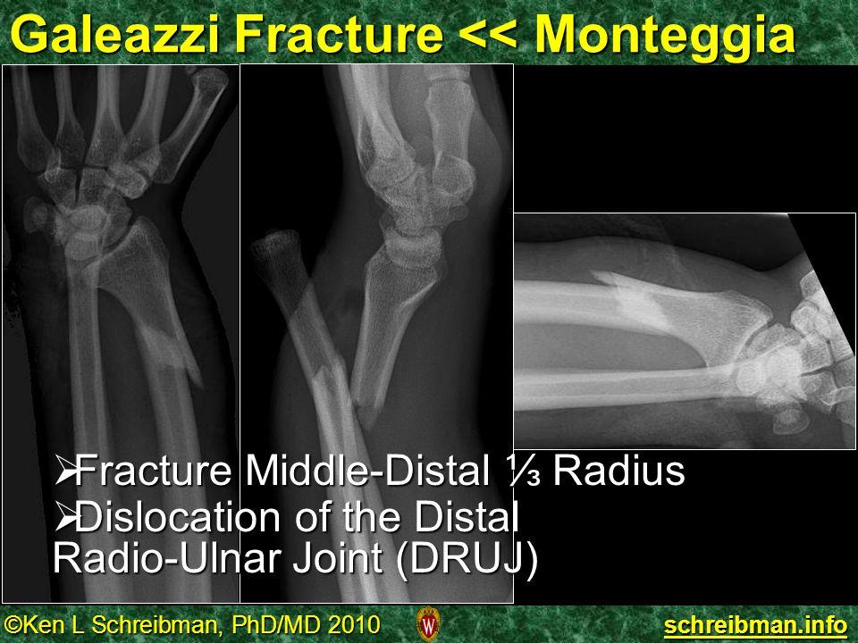 Galeazzi Fracture << Monteggia