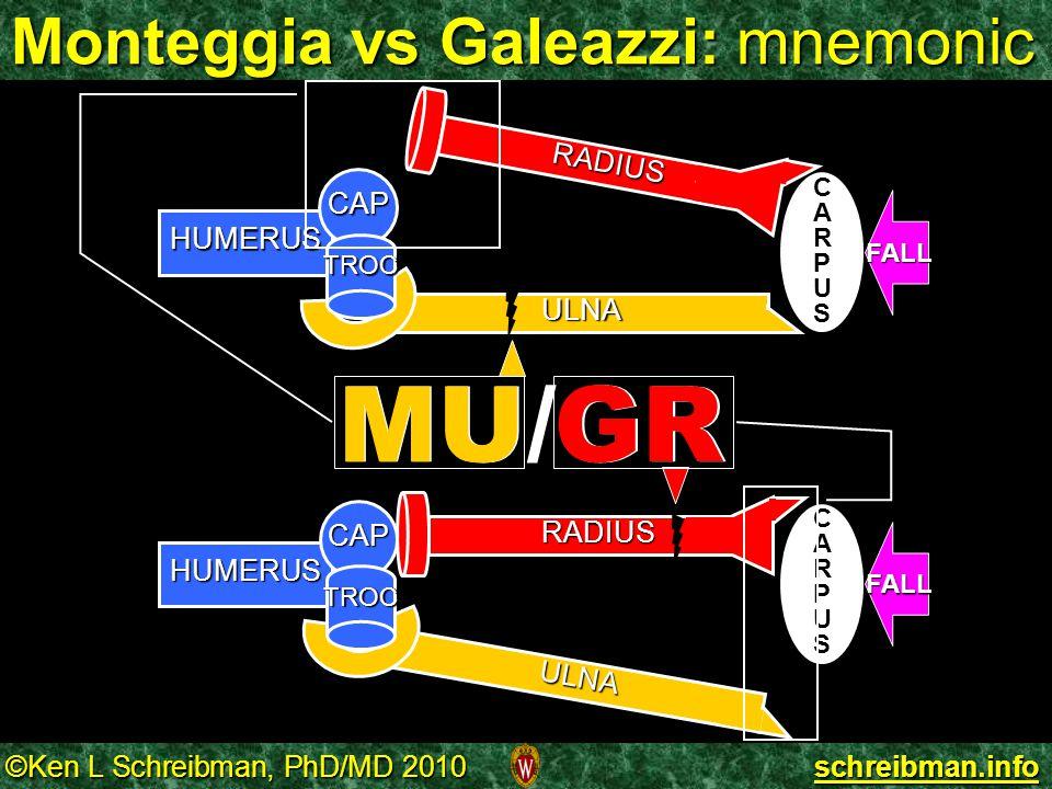 Monteggia vs Galeazzi: mnemonic
