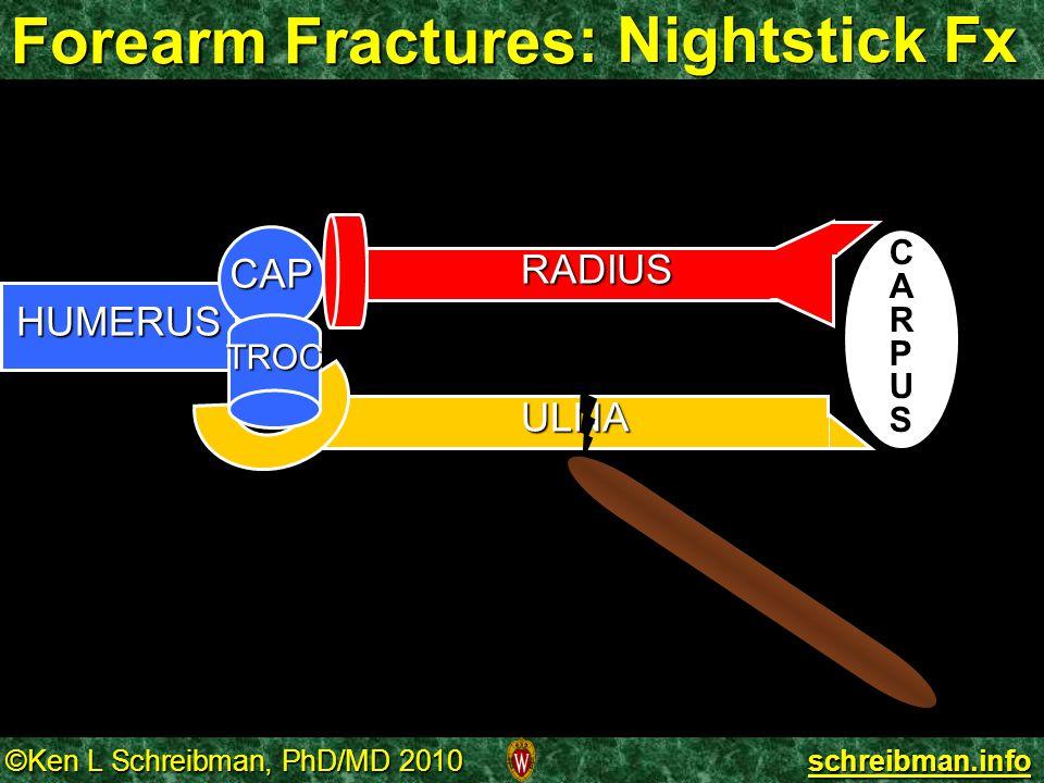 Forearm Fractures : Nightstick Fx RADIUS HUMERUS CAP TROC CARPUS ULNA