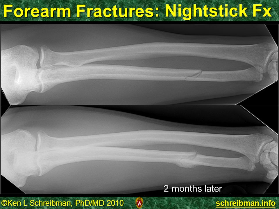 Forearm Fractures : Nightstick Fx 2 months later