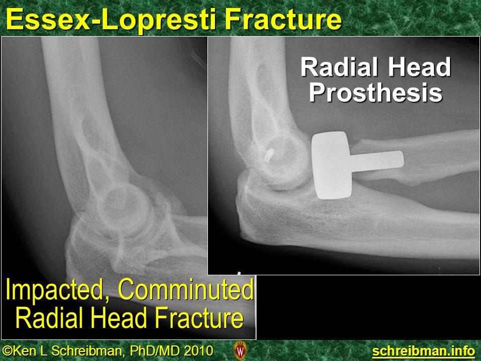 Essex-Lopresti Fracture