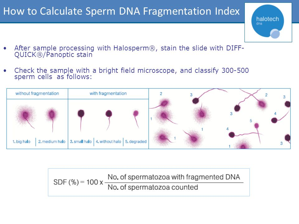 How to Calculate Sperm DNA Fragmentation Index