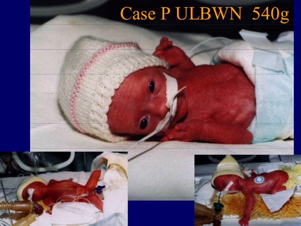 Case Р ULBWN 540g 12