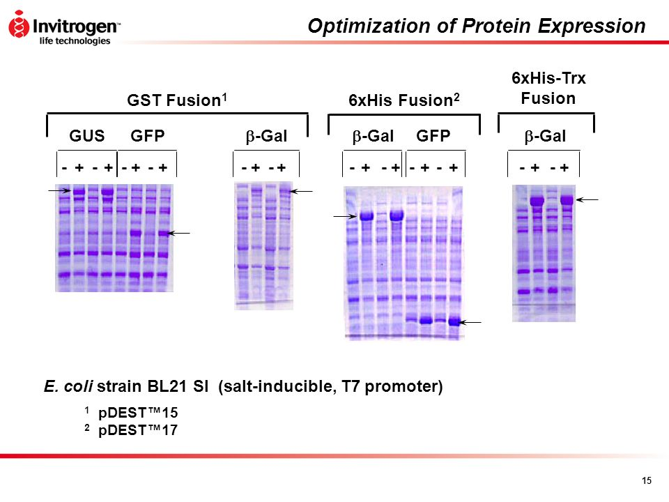 Optimization of Protein Expression