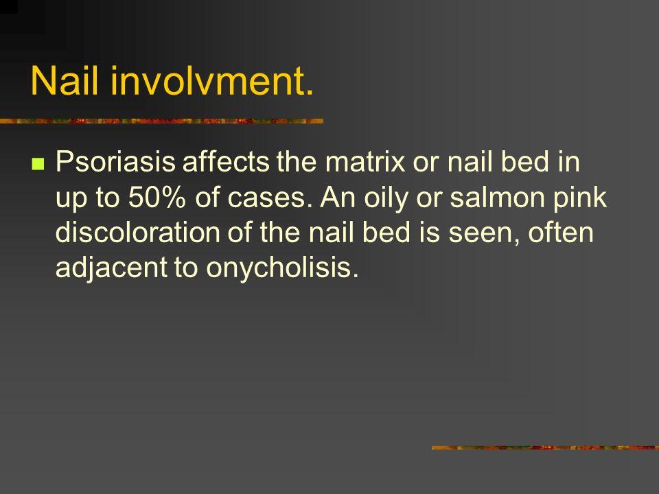 Nail involvment.