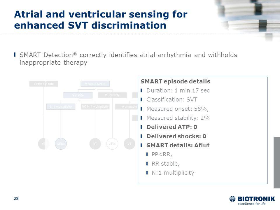 Atrial and ventricular sensing for enhanced SVT discrimination