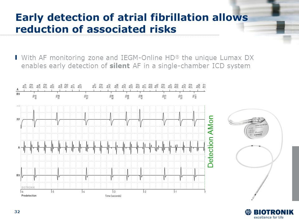 optimized Early detection of atrial fibrillation allows reduction of associated risks.