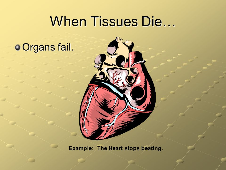 Example: The Heart stops beating.