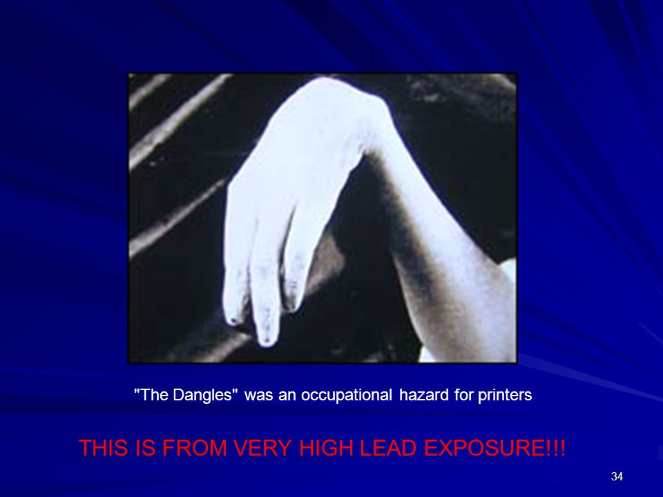 THIS IS FROM VERY HIGH LEAD EXPOSURE!!!