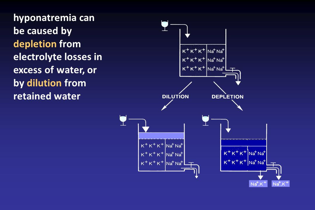 hyponatremia can be caused by depletion from electrolyte losses in excess of water, or by dilution from retained water