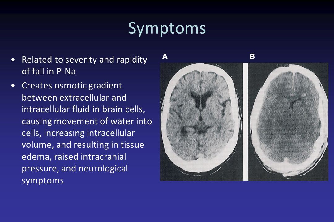 Symptoms Related to severity and rapidity of fall in P-Na